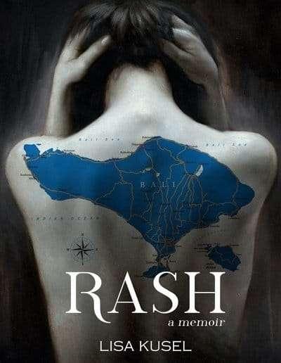 Rash-memoir-Lisa-Kusel-Vermont-author